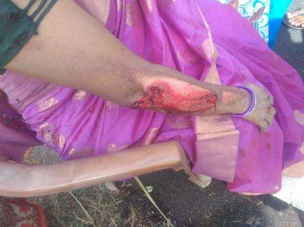 செயின் பறிப்பு சம்பவம்: காவல் அதிகாரியின் உணர்ச்சிபூர்வமான ஆடியோ!